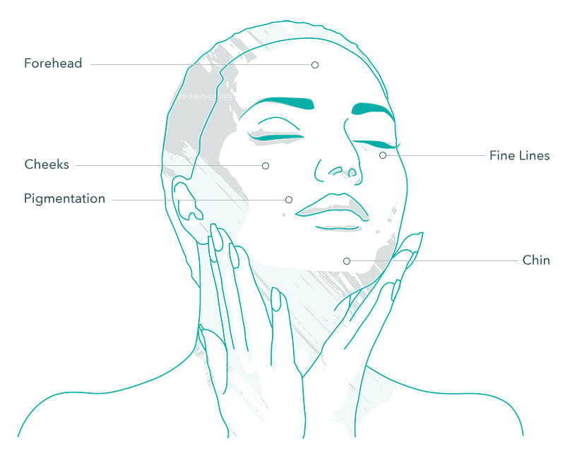 Epionce chemical peel treatment areas