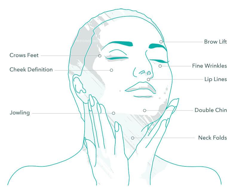 HIFU Non-surgical facelift treatment areas