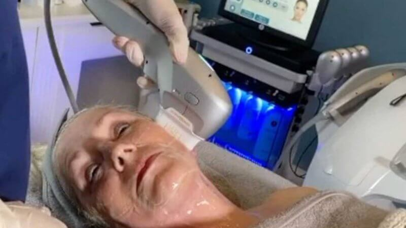 HOFI non surgical facelift treatment