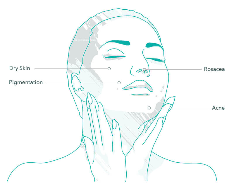 Hydrafacial Treatment Areas
