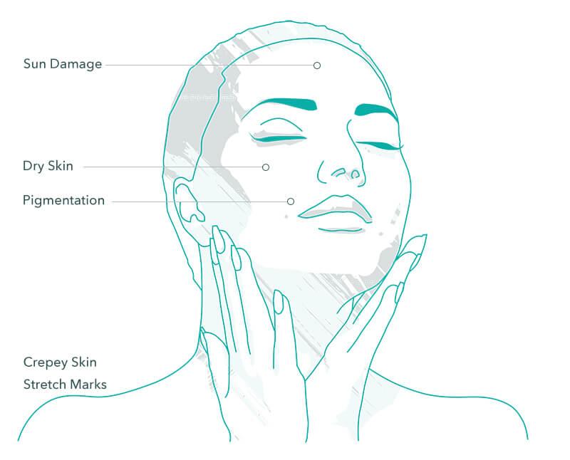 PRX-T33 Skin Peel Treatment Areas