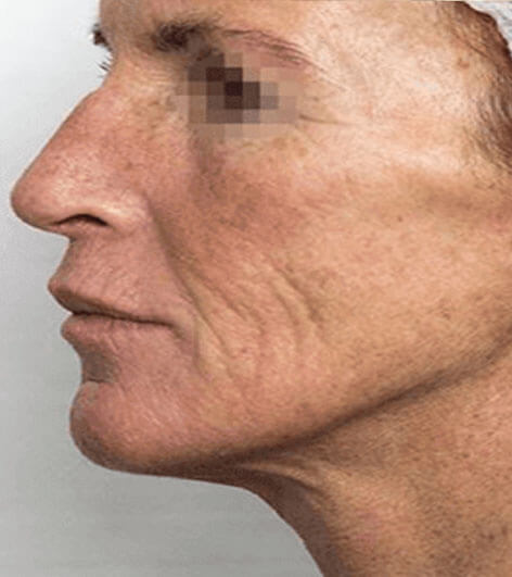 PRX face peel before