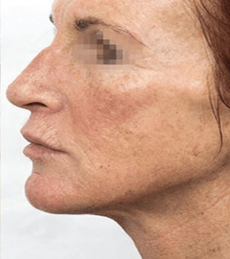 PRX face peel after