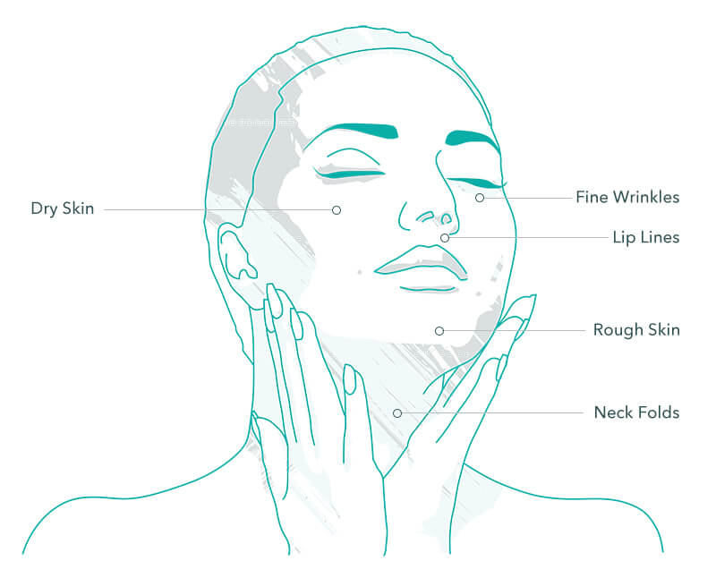 Profhilo Treatment Areas