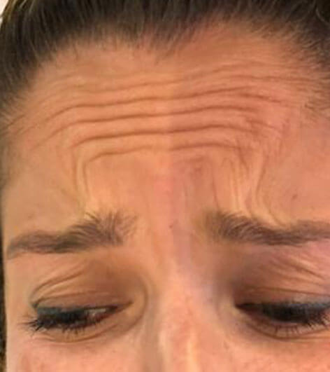 Anti wrinkle injections before picture