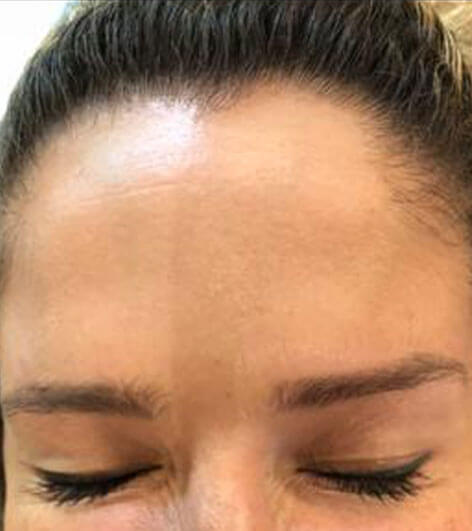 Anti wrinkle injections after picture