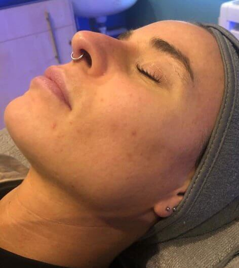 Hydrafacial Before Picture