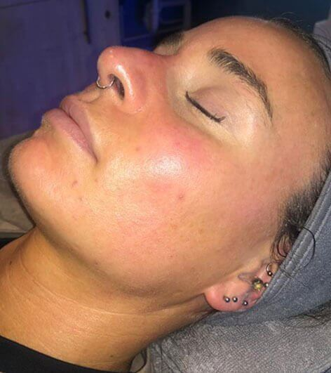 Hydrafacial After Picture