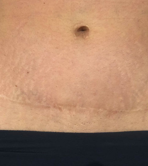 Microneedling before picture