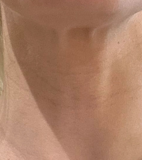 Anti-wrinkle injections in neck - before