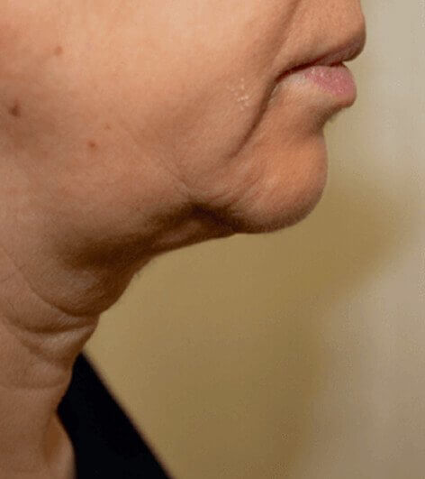 Non surgical neck lift bsfore picture