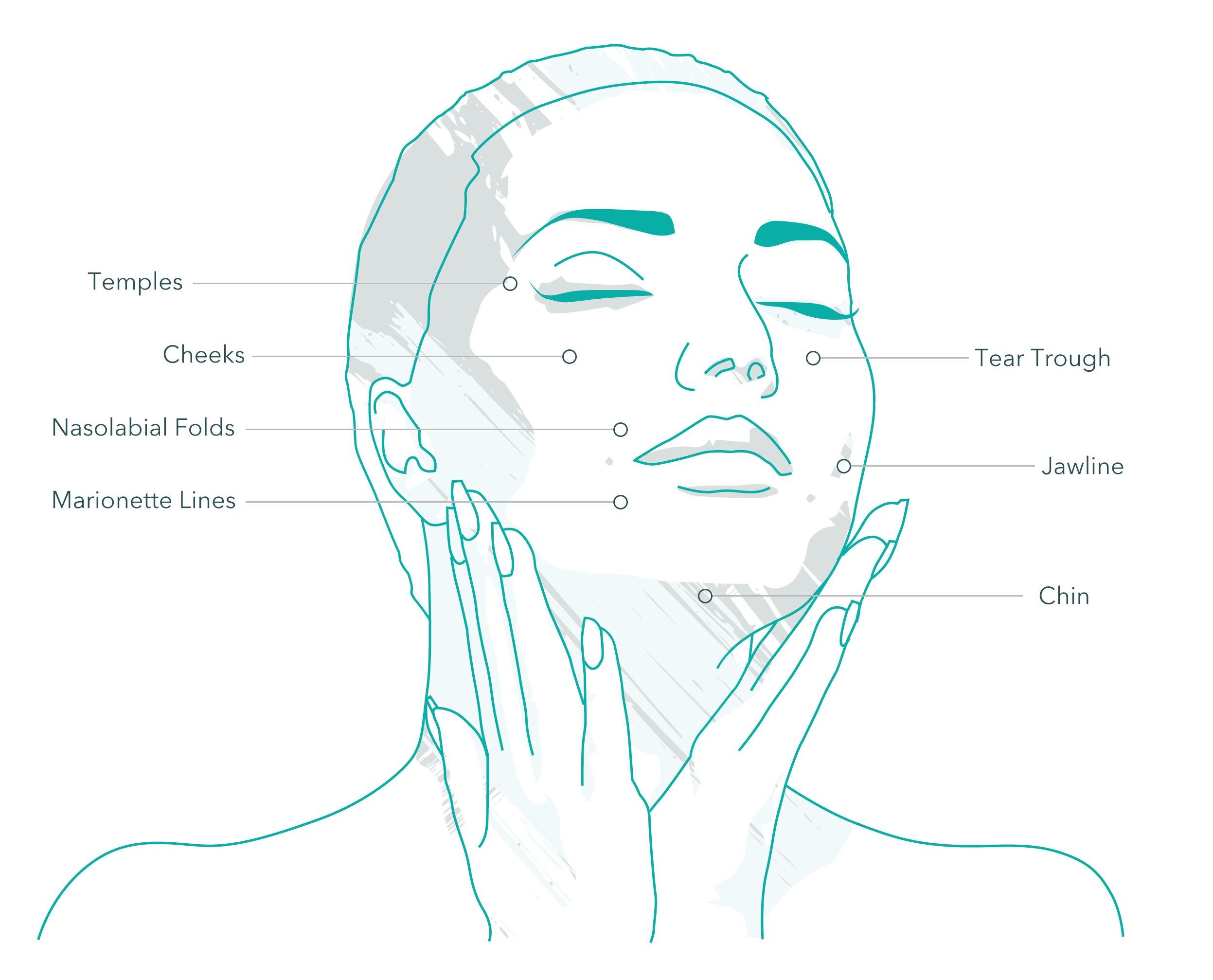 sculptra treatment areas
