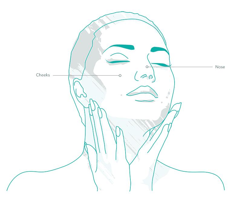 Thermavein Treatment Areas